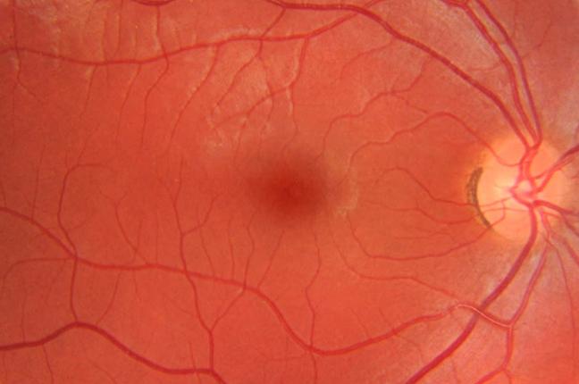 Il risultato grafico della retinografia: la fotografia del fondo oculare permette di individuare la presenza di degenerazioni o anomalie al suo interno