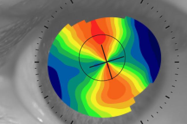 """Il risultato grafico della topografia: la """"mappa corneale"""", o mappa cromatica, ottenuta sull'occhio di un cliente di Ottica Galuzzi"""