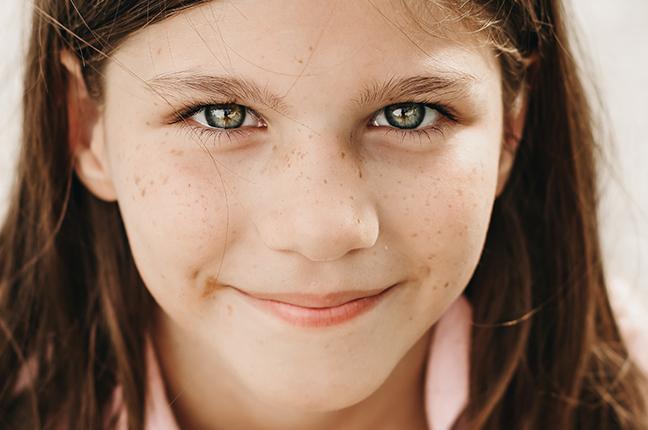 Gli occhi di una bambina; oggi è possibile preservarli, utilizzando lenti a contatto morbide per frenare la progressione miopica